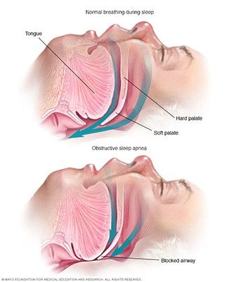 Illustration on the flow of breathing of a person with and without sleep apnea